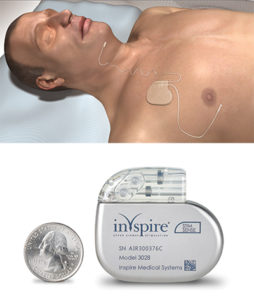 The Inspire System and device